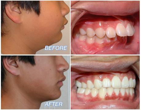 Excessive Overjet – Fredericksburg Orthodontics